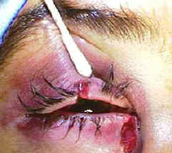 This photo below shows a patient who was hit in their right eye with a fist and who sustained a canalicular laceration.
